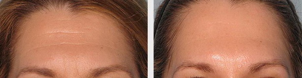 Botox-on-Forehead-wrinkles-before-and-after-Courtesy-of-Chelsea-Eye