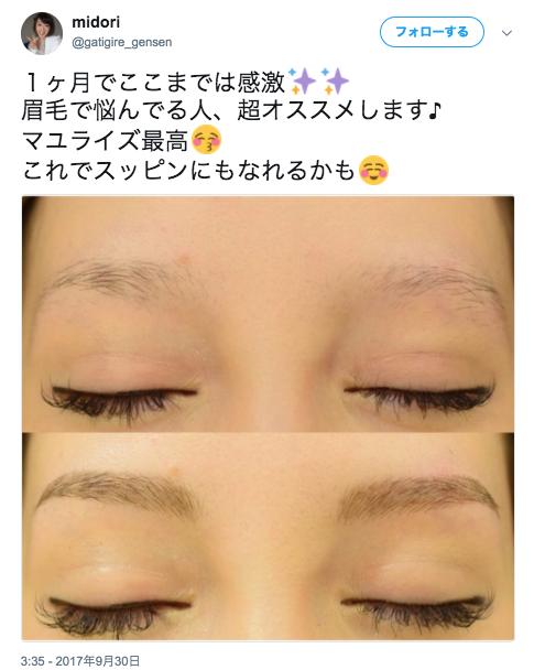 midoriさんのツイート___1ヶ月でここまでは感激✨✨_眉毛で悩んでる人、超オススメします♪_マユライズ最高😚_これでスッピンにもなれるかも☺️_https___t_co_aCUdI0n1QQ_